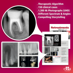 Retreatment. Solutions for apical diseases of endodontic origin - Book Extract - Dentistry Book