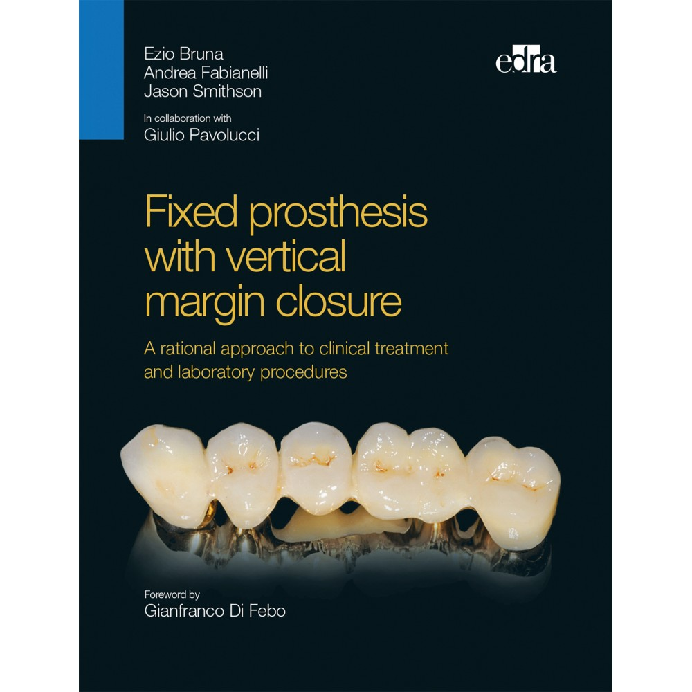 Fixed prosthesis with vertical margin closure - Book Cover - Dentistry Book