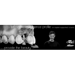 the prosthetic emergence & implant-supported crowns. Live webinar dentistry - dental Continuing Education
