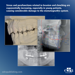 The Vertical Dimension in Prosthetis and Orthognathodontics - Book Extract 2 - Dentistry book