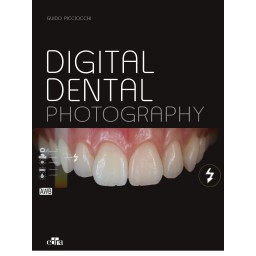 Esthetic Implants - book cover - dentistry book