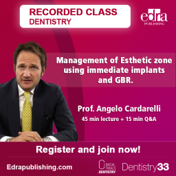 Recorded Webinar - Management of Esthetic zone using immediate implants and GBR